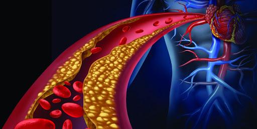 arteriosclerose