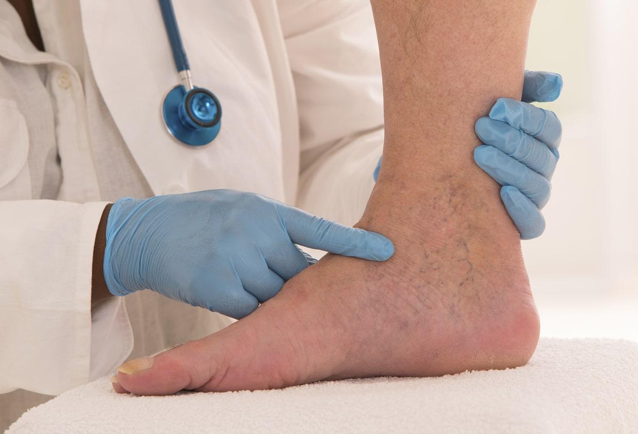Cirurgia de varizes